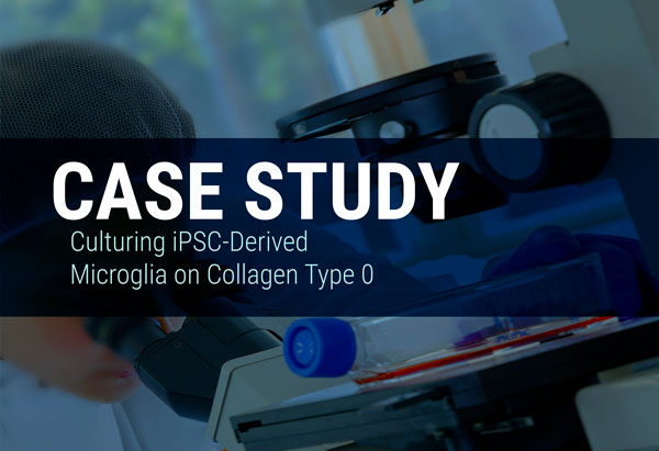 Culturing Microglia? Which collagen you use could impact cell morphology